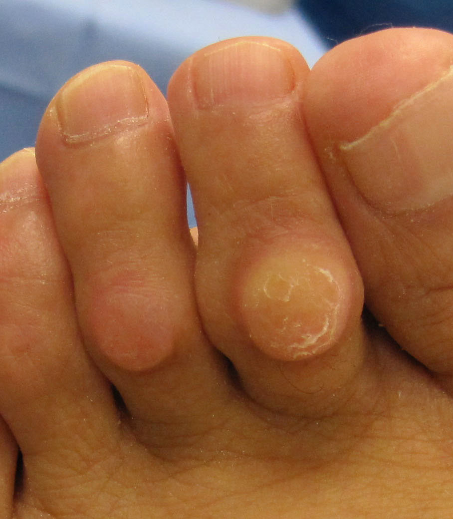 thickened skin on toes