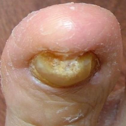 Toenail Problems | Toenail Fungus | Worthington Foot & Ankle